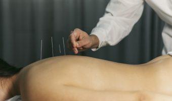 acupuncture-process_23-2148824045