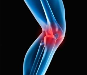 Knee-Image-300x260
