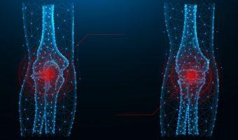 Функциональные нарушения суставов. Курс по остеопатии